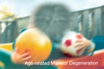 A scene as it might be viewed by a person with age-related macular degeneration. Credit: National Eye Institute, National Institutes of Health